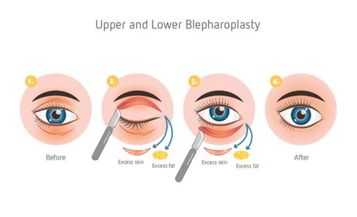 Blepharoplasty Surgery Procedure
