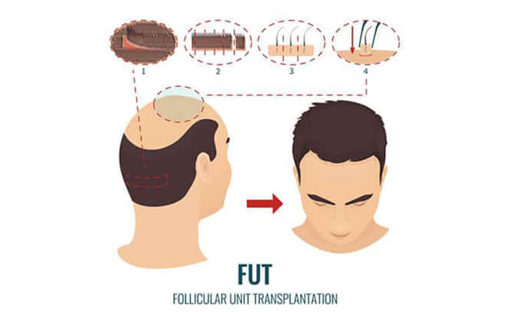 Hair transplant procedure