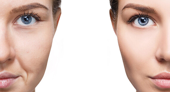 Facial Fat Grafting