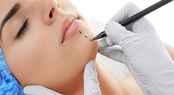 Chin Augmentation in Delhi