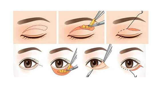 Asian Blepharoplasty in Delhi