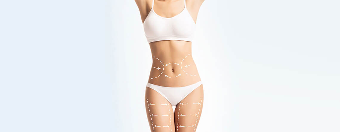 Liposuction Surgery Procedure