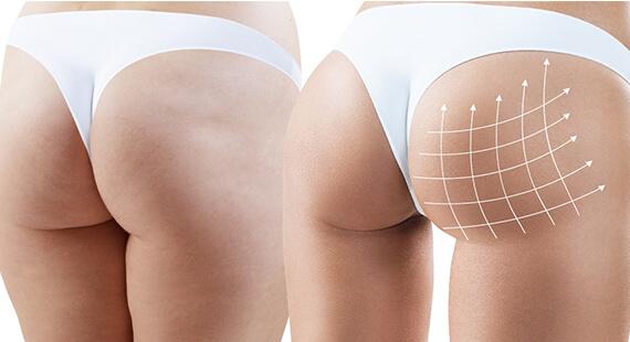 Buttock Augmentation in Delhi