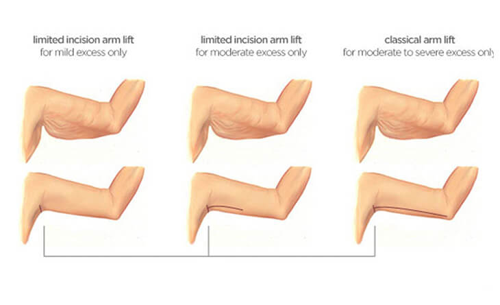 Arm Lift Surgery Procedure