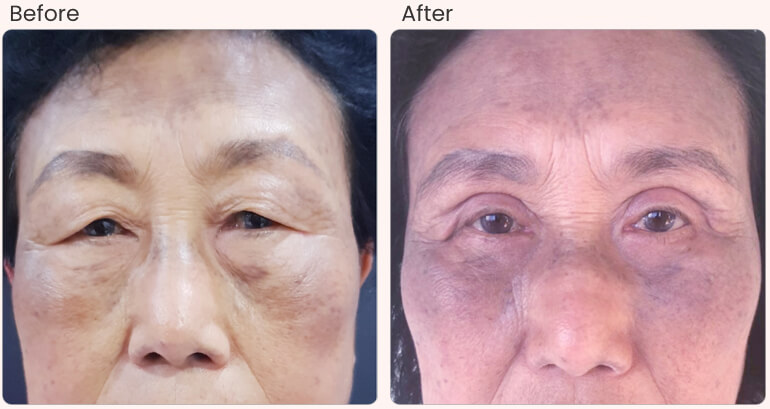 before-after-result-Asian-Blepharoplasty