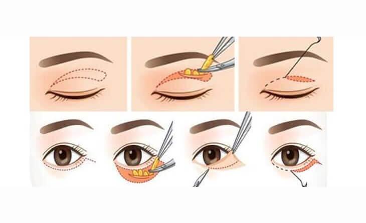 Asian Blepharoplasty Procedure