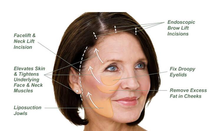 Face Lift Surgery Procedure
