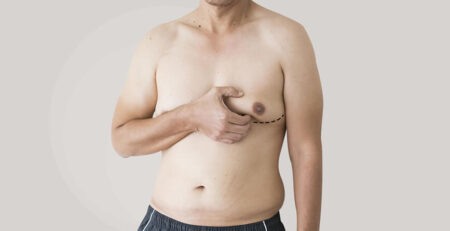 All You Need To Know About Male Breast Reduction - Dr Rajat Gupta - Plastic Surgeon in Delhi