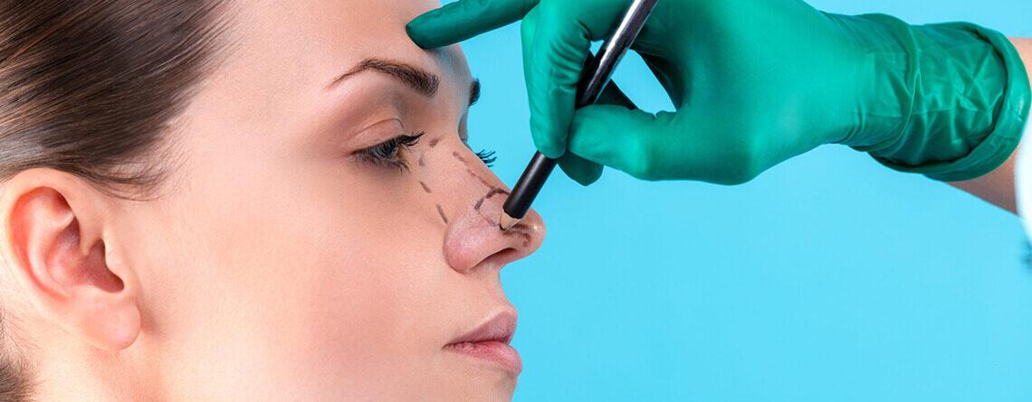 Nose Job - Rhinoplasty Surgery in delhi - Dr Rajat Gupta - Plastic Surgeon in Delhi