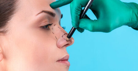 Nose Job - Rhinoplasty Surgery in delhi - Dr Rajat Gupta - Plastic Surgeon in Delhi