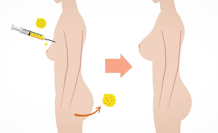 breast and buttock augmentation