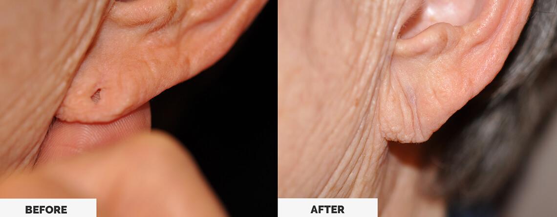 Ear Lobe Repair Surgery