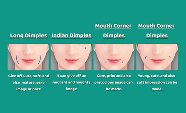 Dimple Creation Surgery