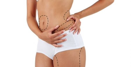 Liposuction Surgery in Delhi