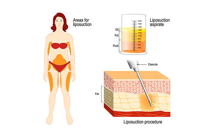 Liposuction Technique
