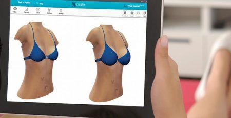 Crisalix 3D Simulation
