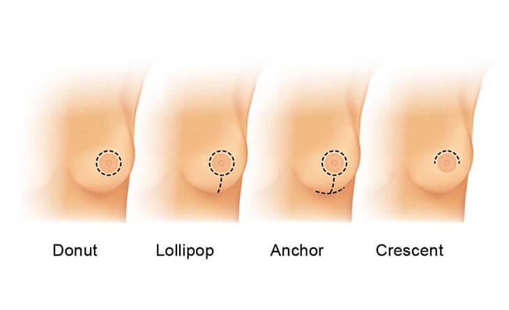 Breast Implant Cost in Delhi
