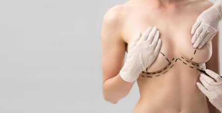 Breast Lift without breast implants