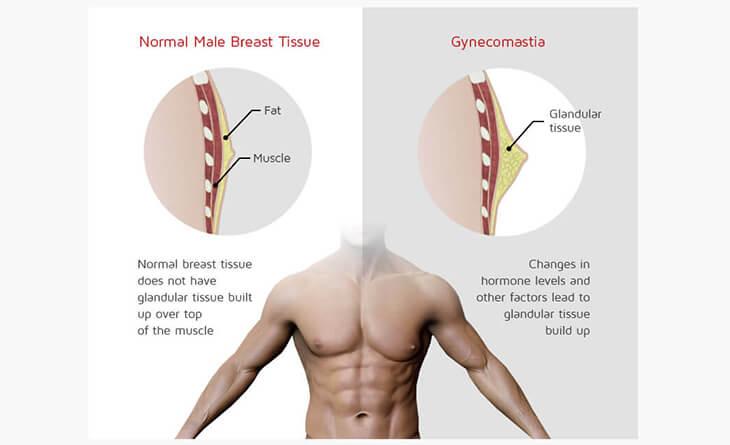 Gynecomastia surgery bruising