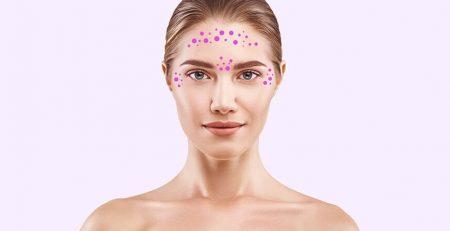 Botox – a medical boon - Dr Rajat Gupta - Plastic Surgeon in Delhi -03