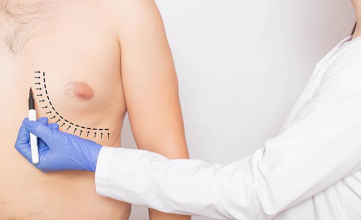 Understanding Gynecomastia in Your 30's