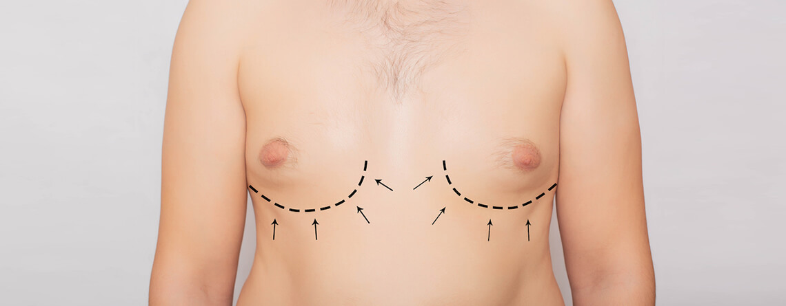 gynecomastia surgery in delhi